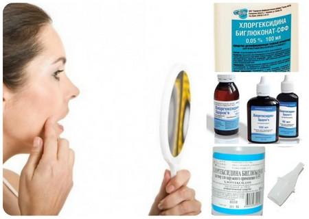 Хлоргексидин від прищів. Лікування прищів Хлоргексидином