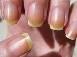 Причини пожовтіння нігтів. Як ефективно відбілити нігті