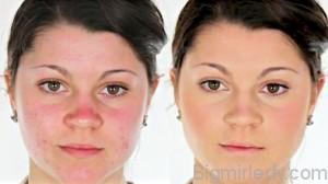 Особливості макіяжу для проблемної шкіри1