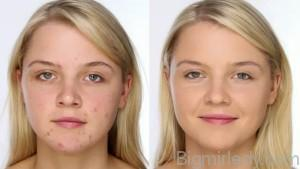 Особливості макіяжу для проблемної шкіри2