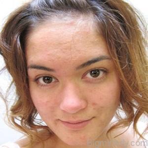 Підшкірні прищі на обличчі причини і лікування