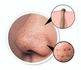 Чорні цятки на носі: що це таке? Чорні цятки в медицині прийнято називати відкритими комедонами. Механізм їх утворення наступний. Сальні