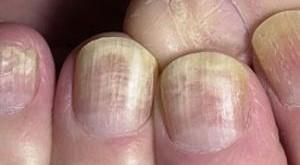 Як знищити грибок нігтьової пластини рук