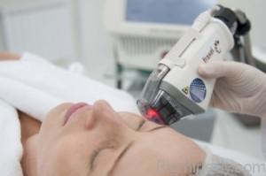 Фракційний термоліз - ефективна процедура лазерного омолодження