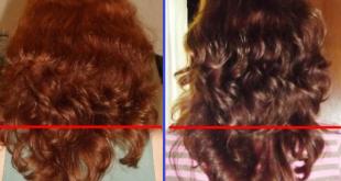 Нікотинова кислота для волосся