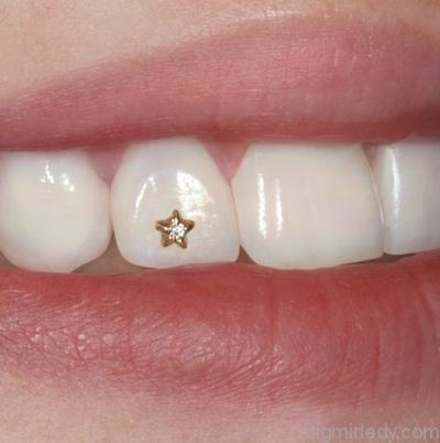 стрази на зуби