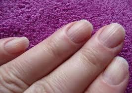 Що означають смужки на нігтях