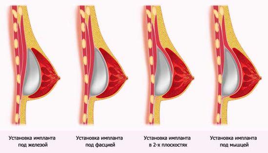 Як збільшити груди за допомогою спорту 2
