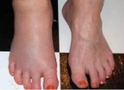 Набряки ніг - лікування народними засобами