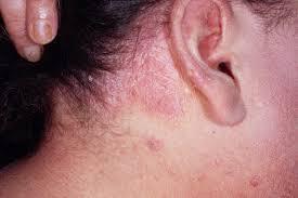 Лікування демодекозу голови