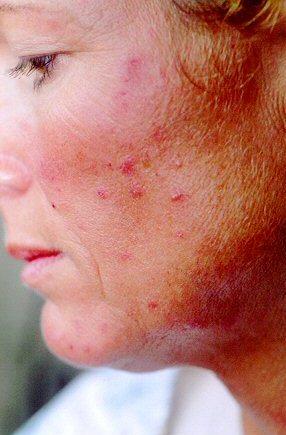 Підшкірний кліщ на обличчі лікування, фото 1