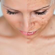 Як вивести плями пігментні на обличчі самостійно