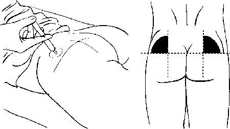 Після уколів шишка на сідниці. Способи лікування 3