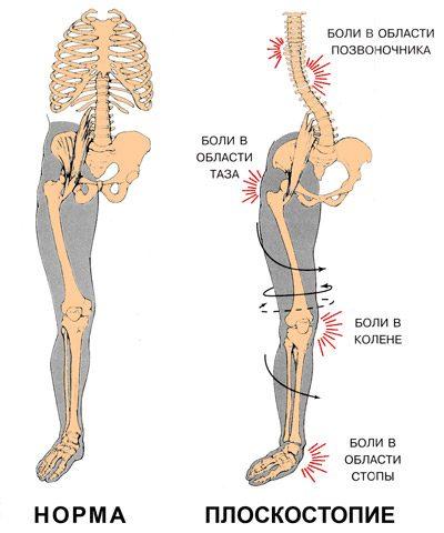 Як лікувати плоскостопість у дітей та дорослих 3