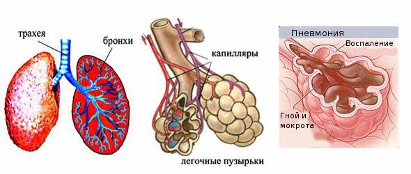 Пневмонія симптоми та лікування 1