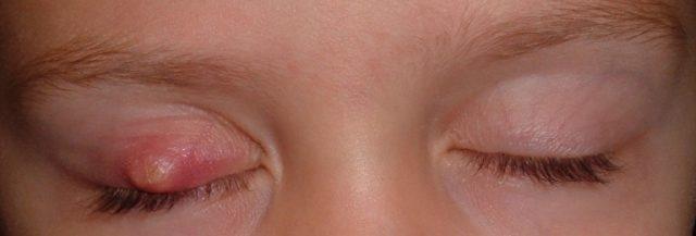 Ячмінь на оці у дитини як лікувати