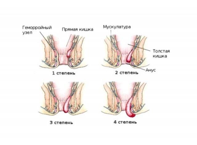 Геморой після родів. Як проявляється і лікується?