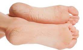 Лікування тріщин на п'ятах. Корисна підбірка