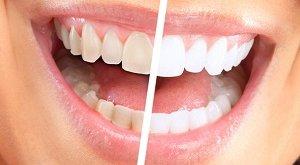 Відбілювання зубів відгуки. Корисна підбірка