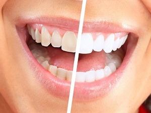 Відбілювання зубів відгуки. Корисна підбірка ebf6078245b30