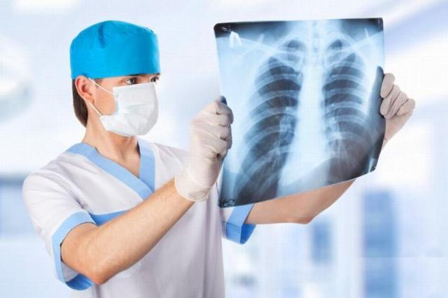 Запалення легень – симптоми, причини та лікування