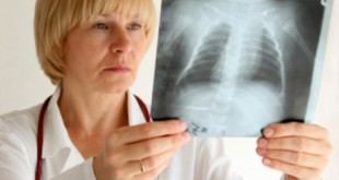Запалення легень – симптоми та лікування