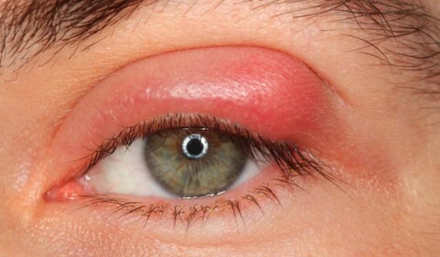 Ячмінь на оці – як швидко та ефективно вилікувати