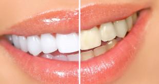 Як відбілити зуби. Дієві способи відбілювання зубів