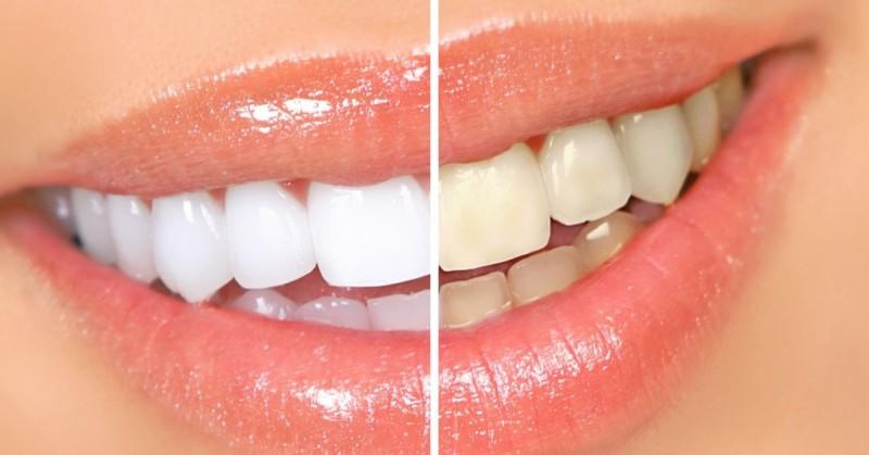 Як відбілити зуби. Дієві способи відбілювання зубів - 763acb52a15a9
