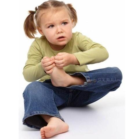 Натоптиші у дітей – ефективне лікування, діагностування